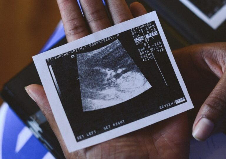 Black woman's hand holding sonogram picture